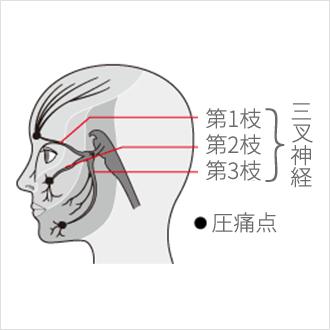 耳 の 後ろ 頭痛
