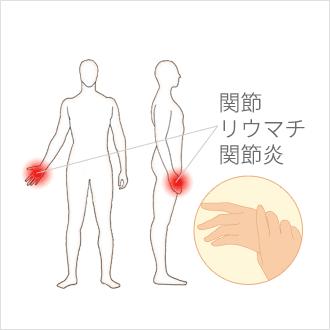 の 痛 親指 付け根 筋肉
